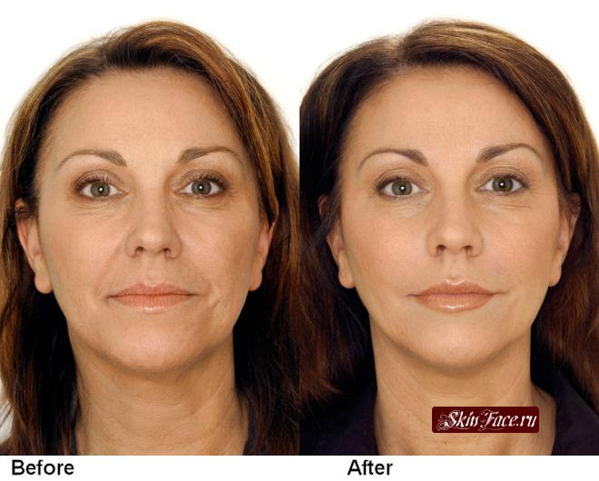 restylane-facial-660-530.jpg