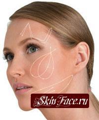 Биоревитализация (ремоделирование рельефа кожи)