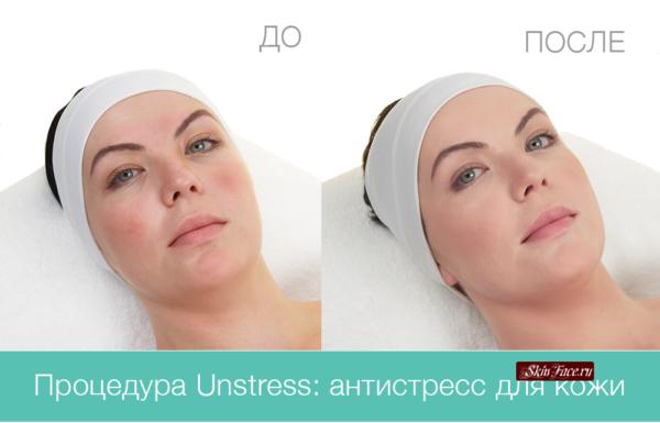 Unstress (Сhristina)