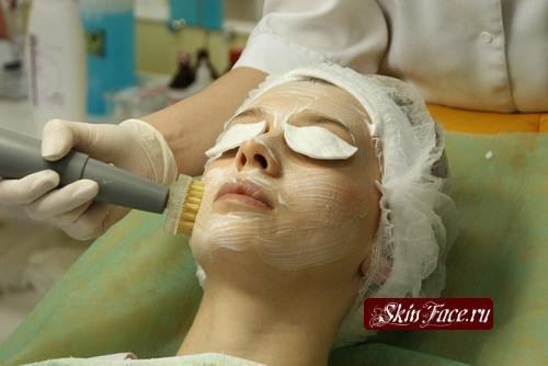 Броссаж  механический метод очистки кожи