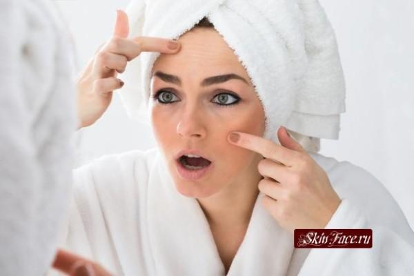 Ухаживаем за проблемной кожей в домашних условиях